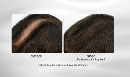 exclusive! Signature Club A Thinning Hair Fill & Color Kit
